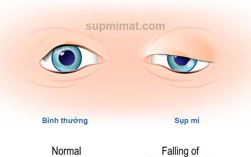 Sụp mí mắt - Hiểu đúng bệnh, chữa đúng cách 1
