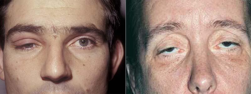 Sụp mí mắt - Hiểu đúng bệnh, chữa đúng cách 2