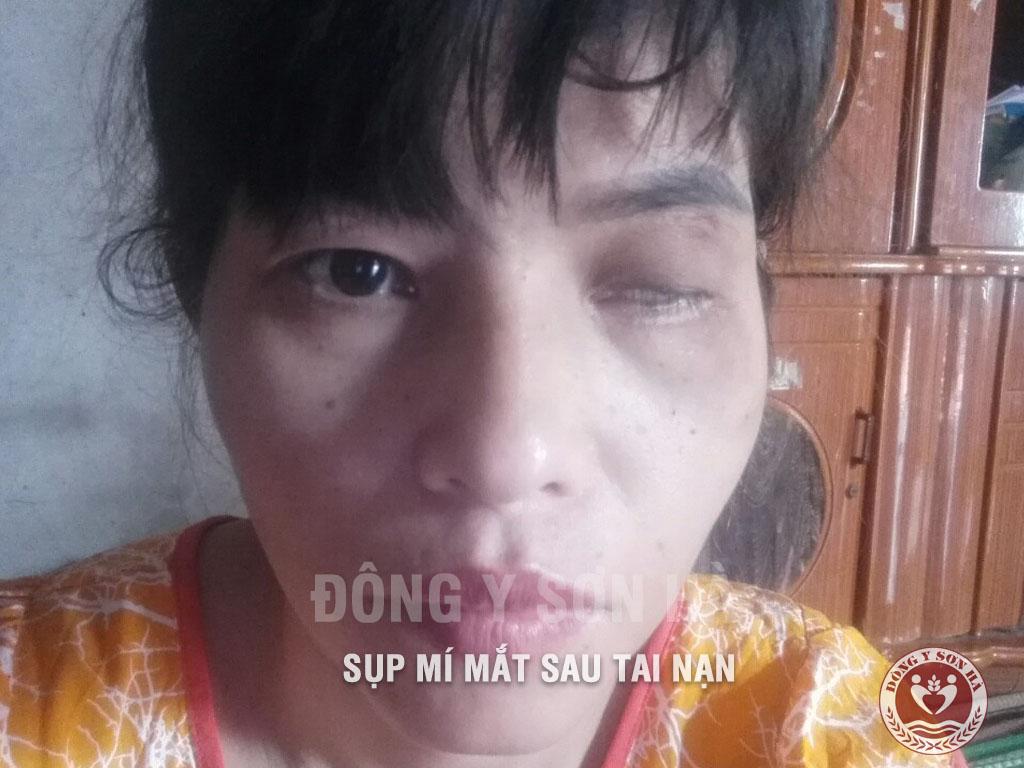 Sụp mí mắt mắc phải sau chấn thương