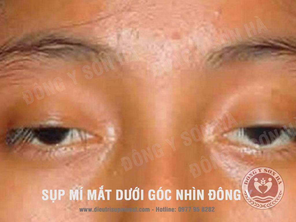 Bệnh sụp mí mắt dưới góc nhìn Đông Y