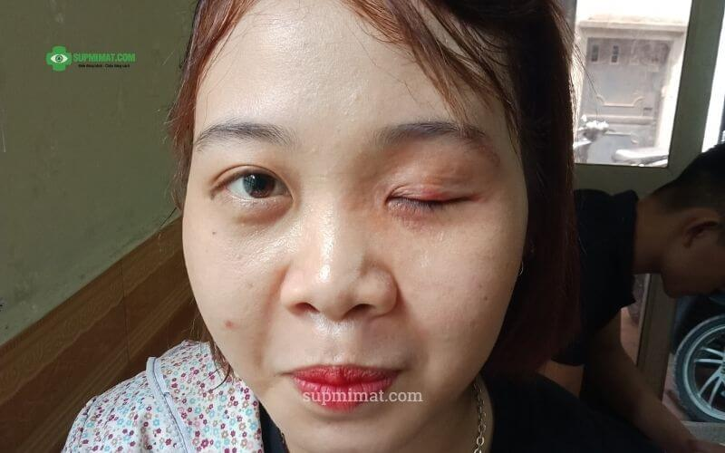 Biến chứng sau phẫu thuật nâng mí mắt