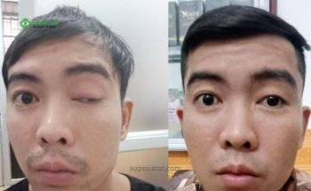 Điều trị sụp mí mắt sau tai nạn như thế nào?