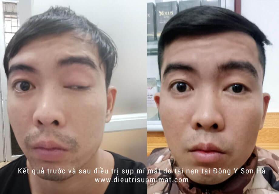 Hình ảnh trước và sau điều trị sụp mí mắt bằng Đông Y do tai nạn