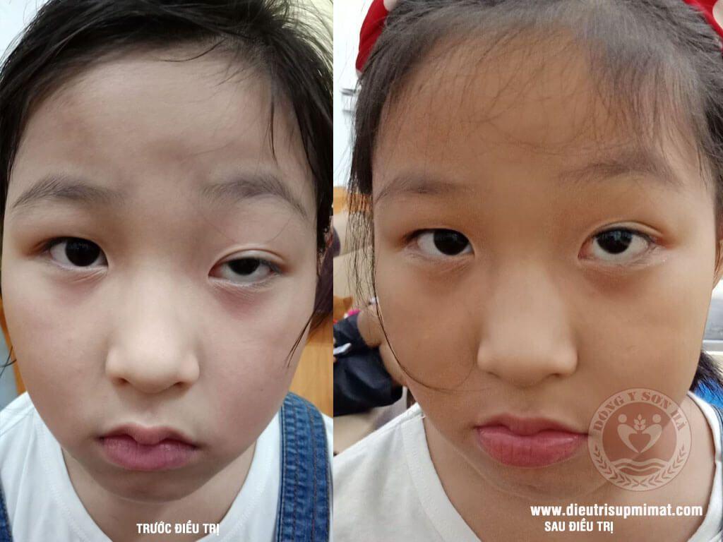 Hình ảnh trước và sau điều trị sụp mí mắt bằng Đông Y do bẩm sinh