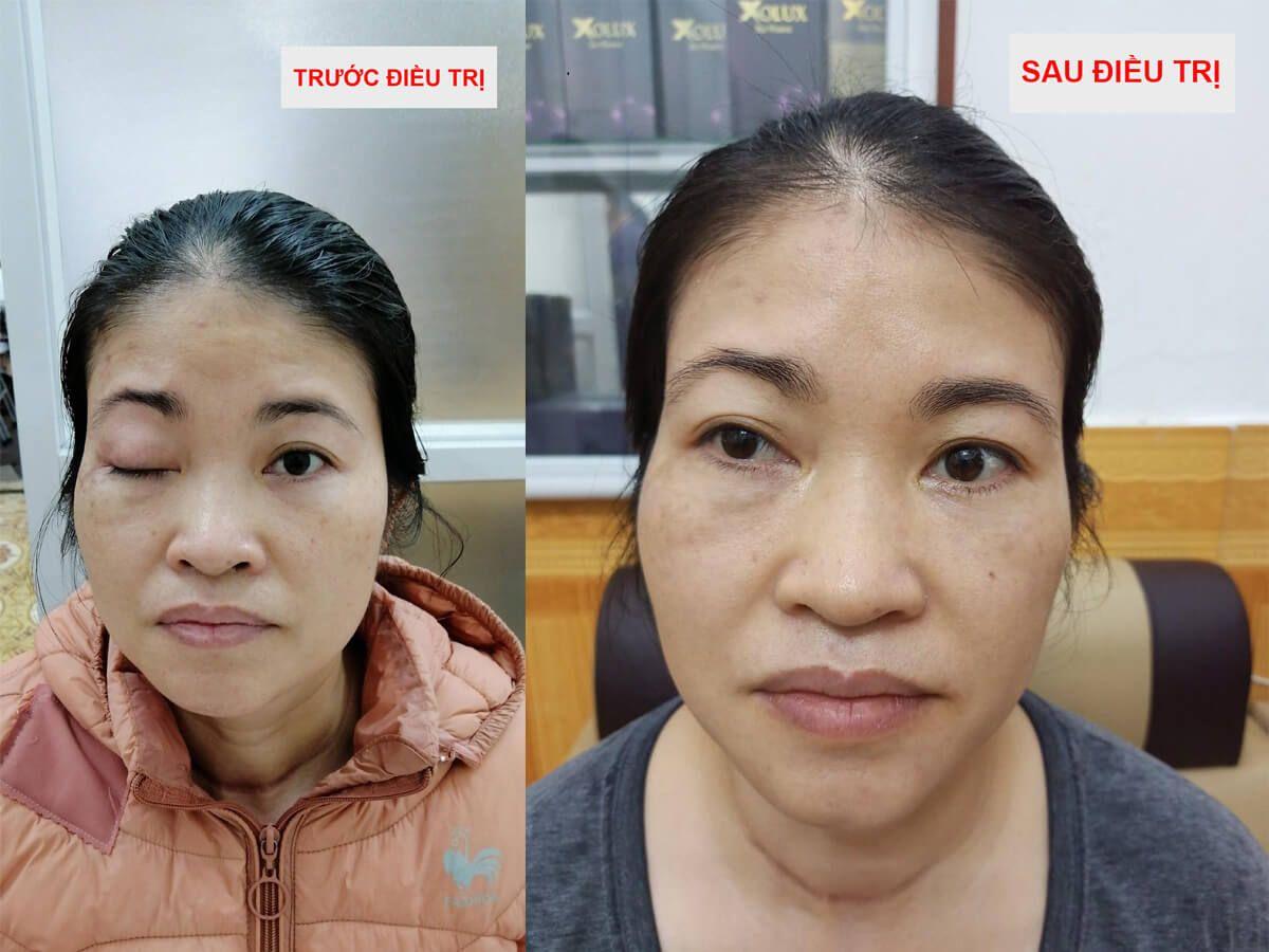 Kết quả điều trị sụp mí mắt bằng Đông y cho bệnh nhân Huyền - Gia lai