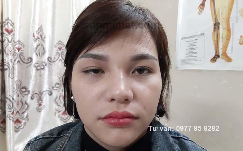 Sụp mí mắt sau tiêm Botox
