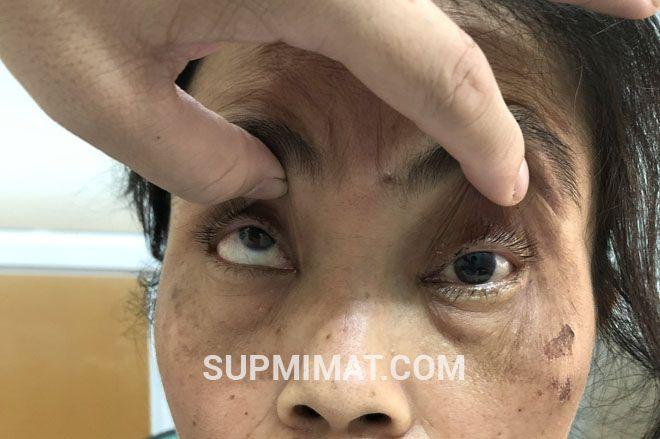 Biểu hiện sụp mí mắt do liệt dây thần kinh 3 là như thế nào? 1