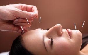 Châm cứu chữa sụp mí mắt - Phương pháp chữa sụp mi hiệu quả và tiết kiệm nhất 2