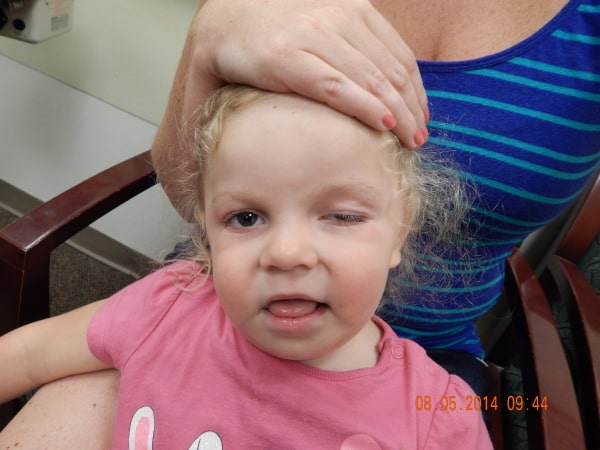 Điều trị sụp mí mắt ở trẻ sơ sinh như thế nào? Cần lưu ý gì không? 2