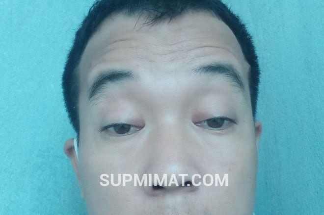 Nhược Cơ Mắt - Nguyên nhân sụp mi mắt khó chữa dứt điểm. 1