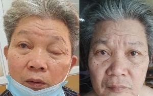 Sụp mí mắt do lão hóa. Nguyên nhân và cách điều trị không phẫu thuật 1