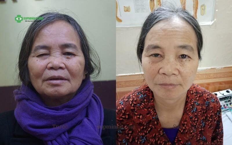 Hình ảnh trước và sau điều trị sụp mi do tai biến bằng y học cổ truyền