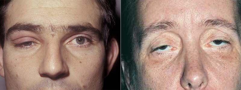 Sụp mí mắt có thể là 1 mắt hoặc cả 2 mắt