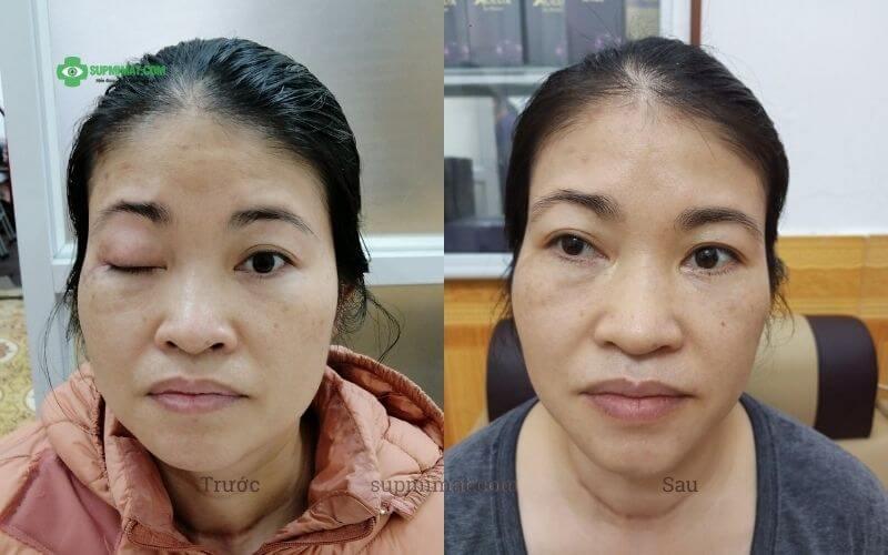 Hình ảnh trước và sau khi điều trị sụp mí mắt do liệt dây thần kinh số 3 bằng Đông y