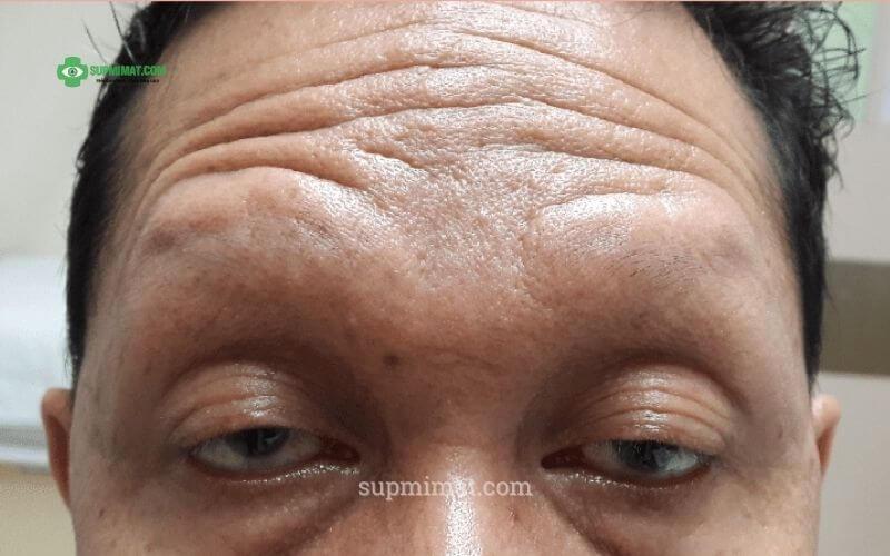 Sụp mí mắt ở người cao tuổi thường xẩy ra đồng thời cả 2 mắt
