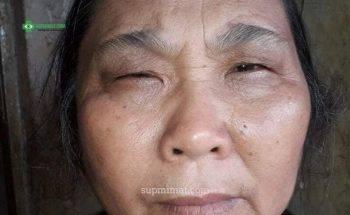 Sụp mí mắt ở người cao tuổi: Nên điều trị bằng phương pháp nào hiệu quả nhất?